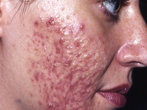 How To Get Rid Of Pimple Under Skin | apexwallpapers.com