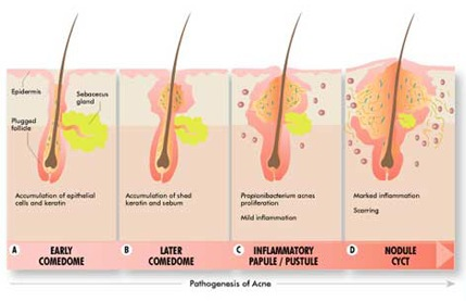 how to get rid of prominent sebaceous glands under eyes